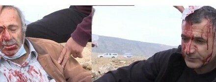 Deux agriculteurs blessés dans une attaque des colons à Naplouse